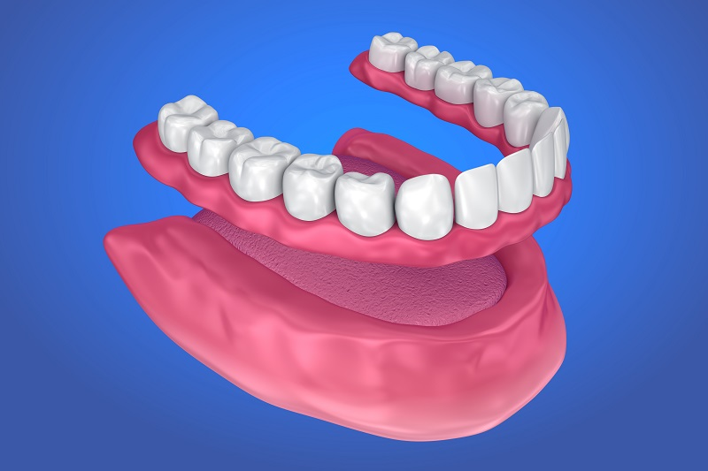 Different Types of Dentures Available For The Comfort Of The Dental Patients