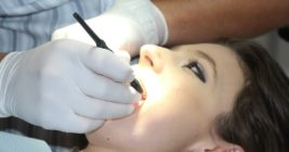 Teeth cleaning and removal of cavities